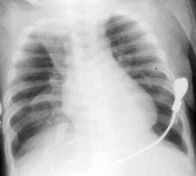 Right upper and lower left lobe collapse